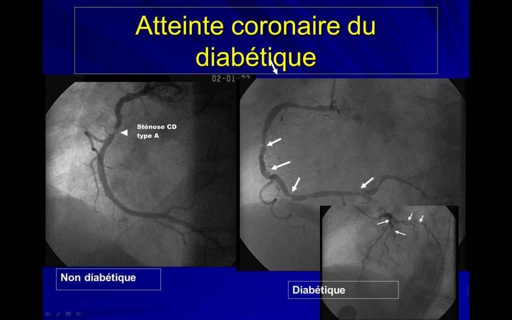 Coronarographie chez un non diabétique et chez un diabétique