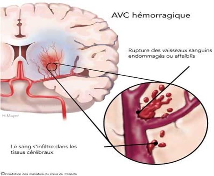 schéma de l'AVC hémorragique