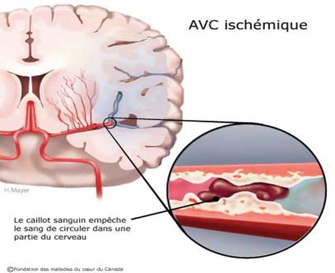 Schéma d'un AVC ischémique
