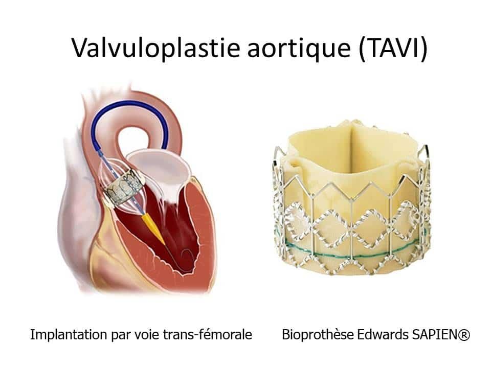 Image de l'implantation d'une bio prothèse aortique par TAVI