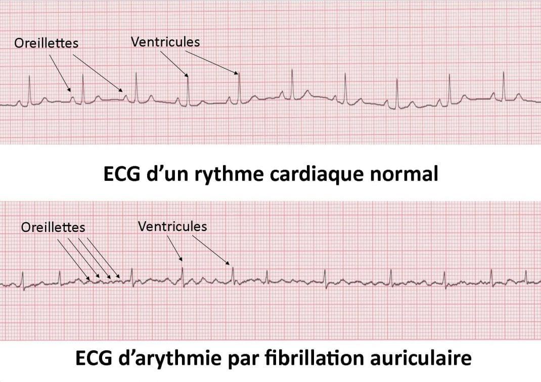 Tracé ECG normal et d'une fibrillation auriculaire